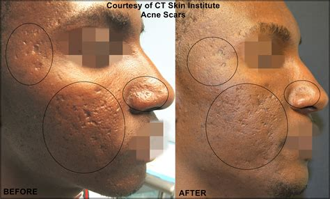 laser stretch mark removal dermatology picture 6