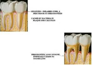 bone loss in teeth picture 13