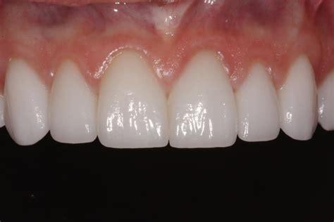 white teeth california picture 18