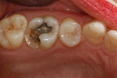 fractured teeth picture 10