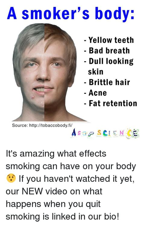 when you stop smoking will your skin tighten picture 12