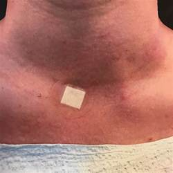 treatment of thyroid cyst picture 5