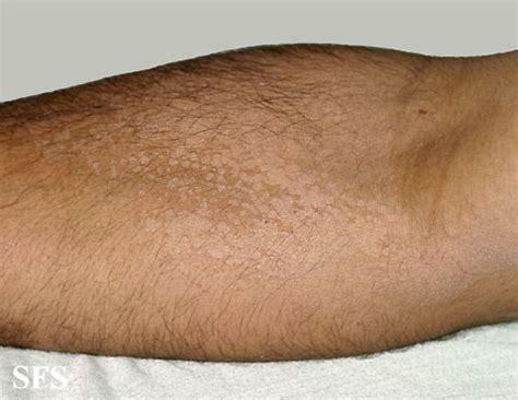 py patches of skin left arm picture 12