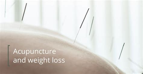 acupuncture weight loss picture 9