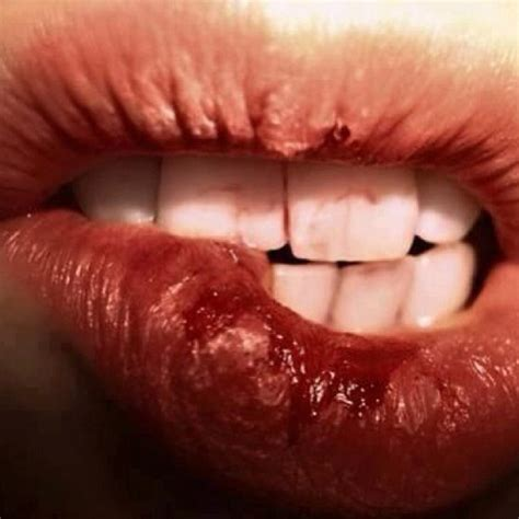 what deficiencys cause a dry mouth and lips picture 13