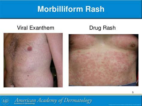 skin rash picture 2