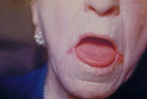 oral yeast infections picture 9