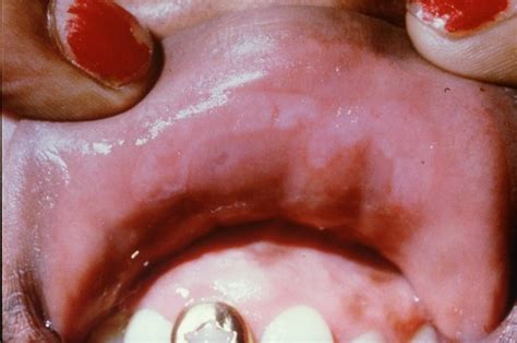 syphilis chancre color on penis tip picture 13