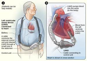 yeast in blood system with lvad picture 5