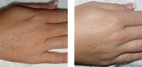 beverly hills hair removal picture 1