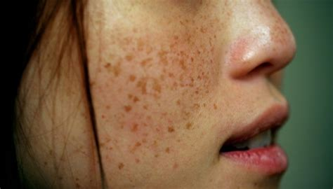 what does liver spots look like picture 2