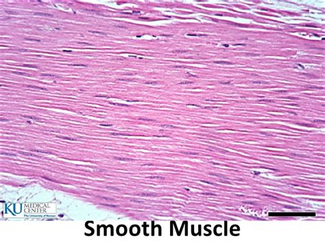 cardiac muscle picture 5