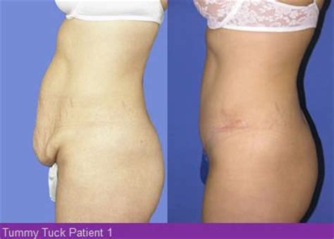 will loose skin from weight loss get better with time picture 10