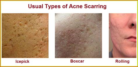 how can you spot a herpes scar picture 5