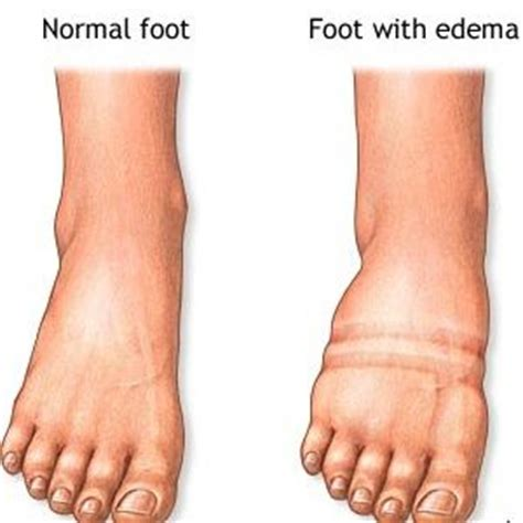 weight loss for edema pateints picture 1