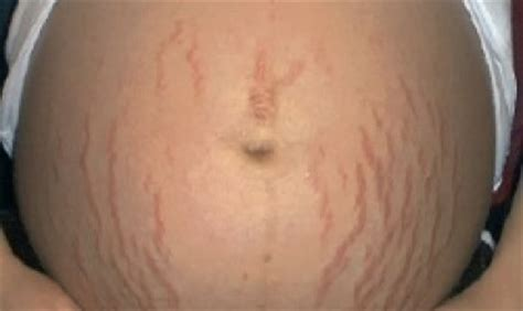 stretch marks in pregnancy picture 13