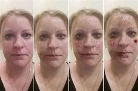 meth skin disorders picture 1