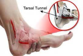can tarsal tunnel problems restricted blood flow to picture 7