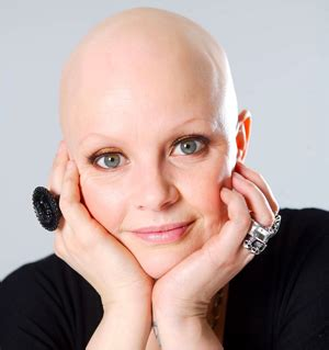causes of hair loss in women picture 4