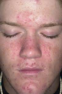 shaving face herpes picture 7