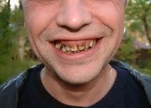 babies rotten teeth picture 2