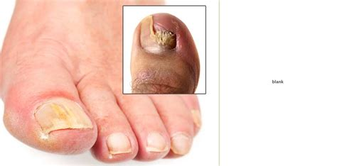 premier nail fungus chicago picture 17