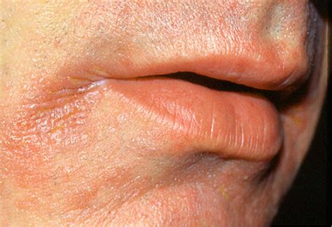corners of lips ed fungus picture 2