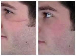 acne scar remover picture 6