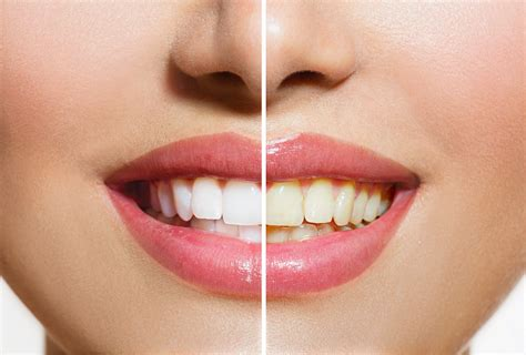 fort worth teeth whitening picture 6