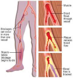 high blood pressure pain in arms and legs picture 15