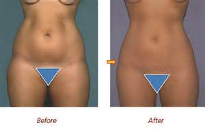 lipo 6 before and after pics picture 10
