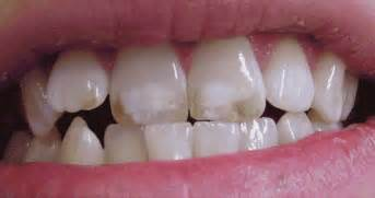 discolored teeth fluorosis picture 5