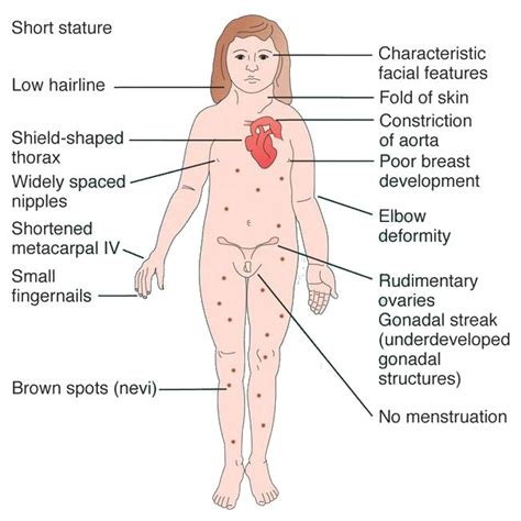 high blood pressure and pregnancy picture 10