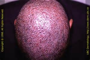 boils in scalp picture 6
