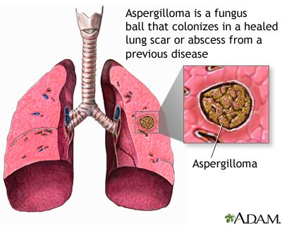 ill workcool that will workbacterial lung infection picture 15
