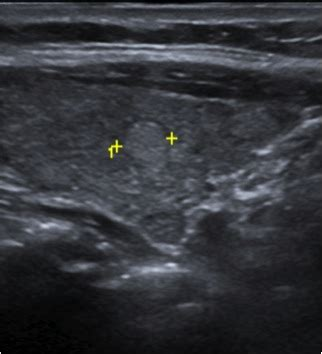 thyroid nodules with halos picture 3