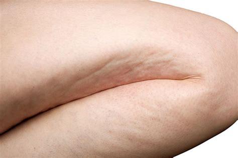 maca for cellulite picture 1