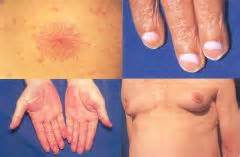 chronic liver disease skin disorder name picture 8