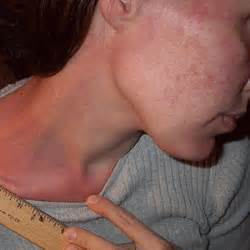 life threatening allergic reaction of skin picture 1