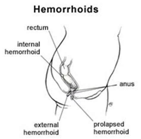hemorrhoid voycious picture 18