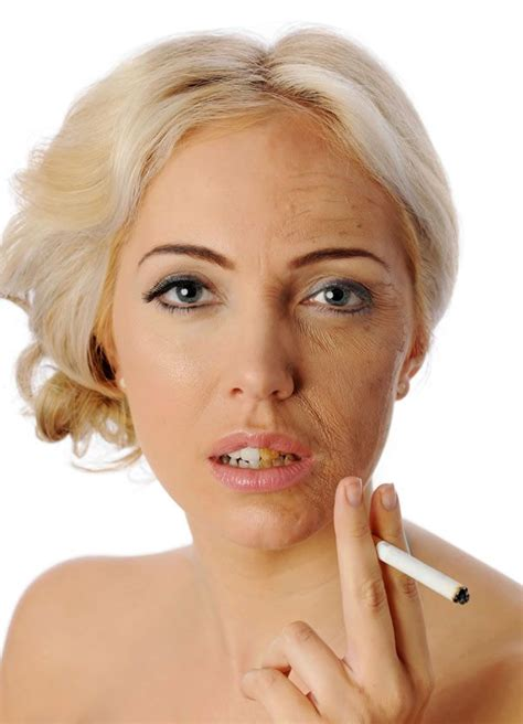 when you stop smoking will your skin tighten picture 13