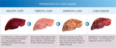 what are the causes of liver disease picture 4