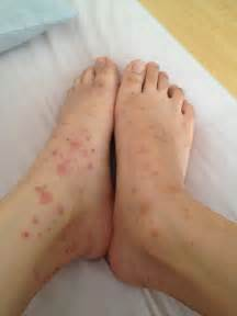 galis aso signs and symptoms, cure picture 6