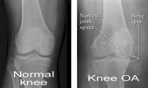 joint effusion knees picture 19