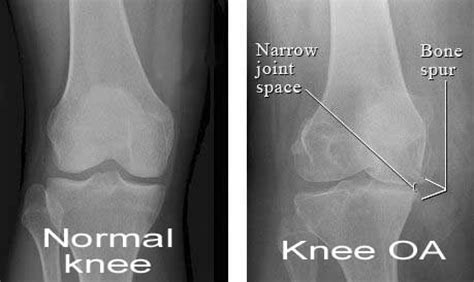 osteoarthritis pain relief picture 6