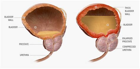 bladder and prostate picture 5