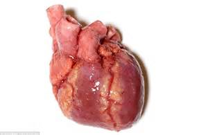 pic of a real human liver picture 2