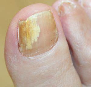 fingernail fungus picture 3