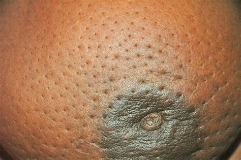firm skin picture 17