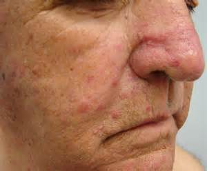 oral cancer from acne radiation picture 11
